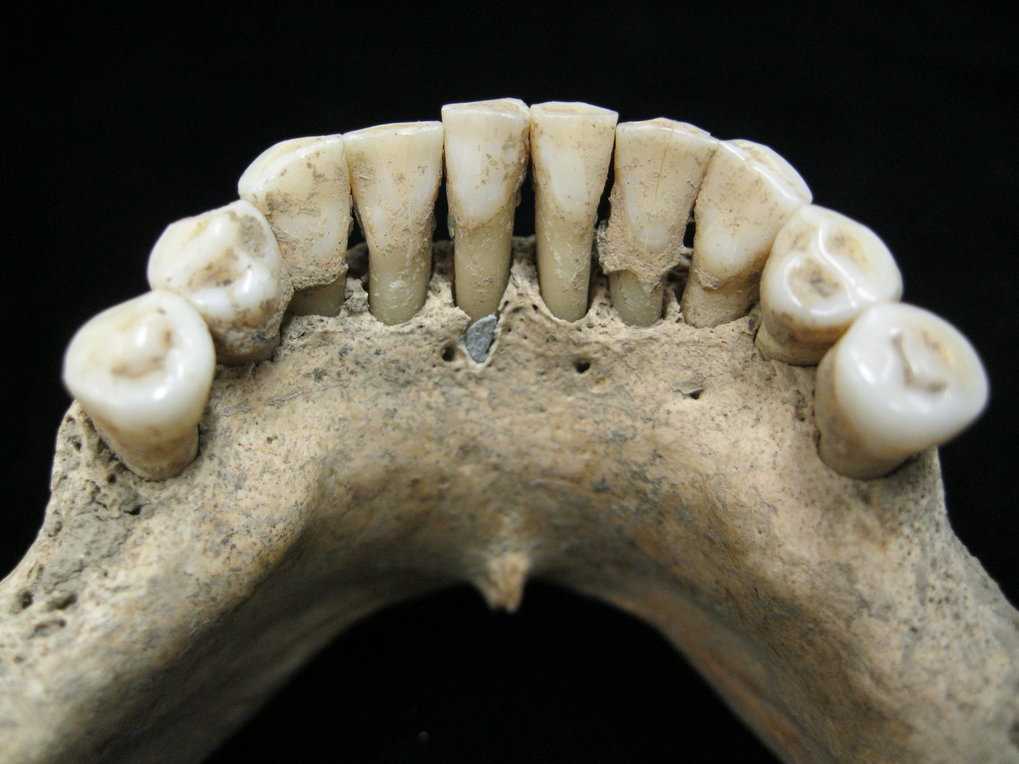 Dental calculus on the lower jaw a medieval woman entrapped lapis lazuli pigment.