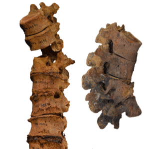 Human vertebrae showing characteristic skeletal changes associated with tuberculosis.