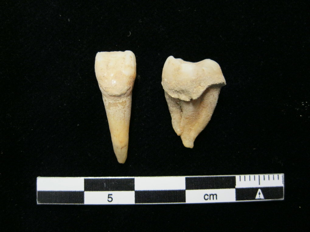 Bronze Age human teeth with dental calculus deposits from Mongolia.