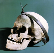 The Copper Age skull of Vörs (Hungary) with a copper diadem.